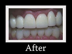 Hollywood Smile - After