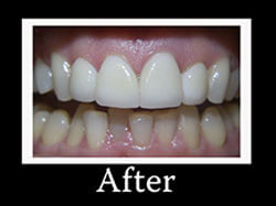 After Smile Redesign Patient 1