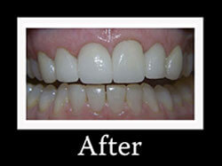 After Smile Redesign Patient 2
