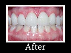 After Smile Makeover