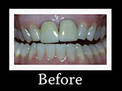 Before Smile Redesign Patient 2