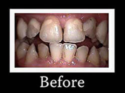 Hollywood Smile - Before