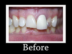 Before Smile Redesign Patient 1