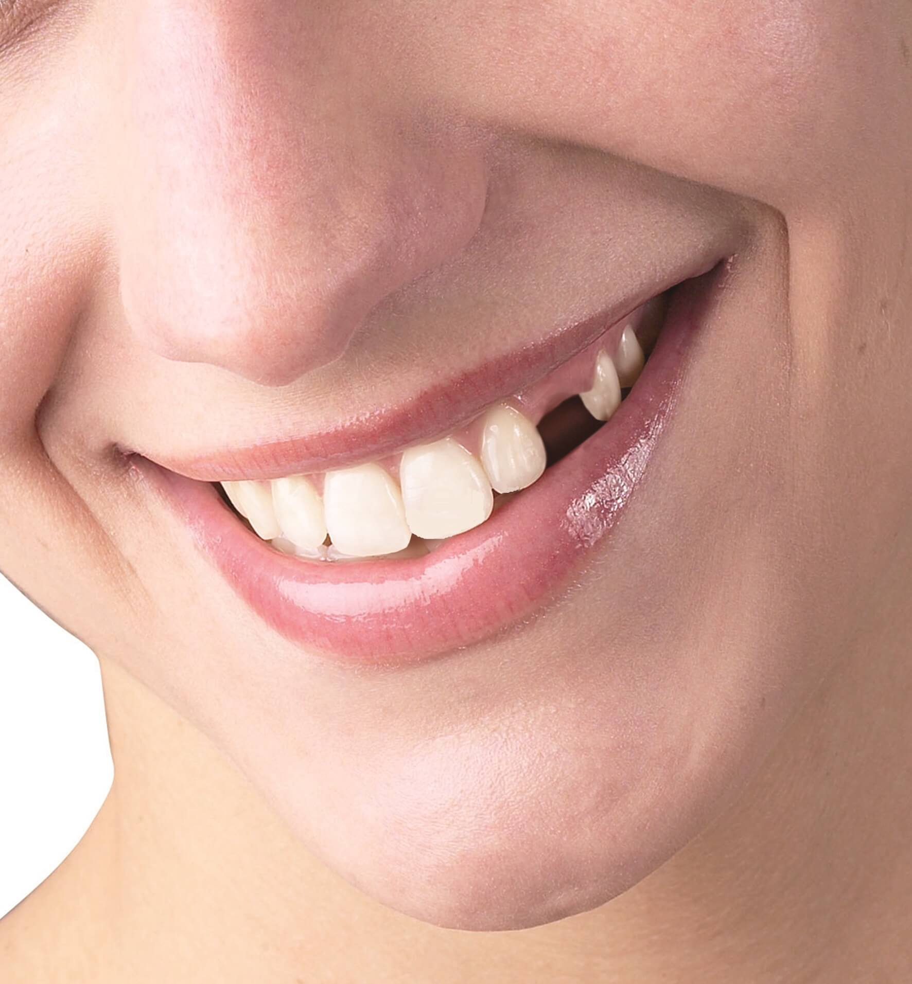 reasons for tooth loss in adults